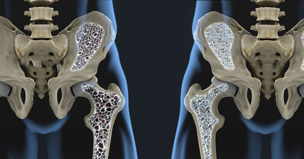 نقش شیر سویا در جلوگیری از پوکی استخوان
