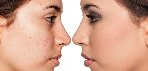 روغن آرگان آکنهی پوستهای چرب را درمان میکند