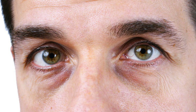 تیرگی و کیسه زیر چشم